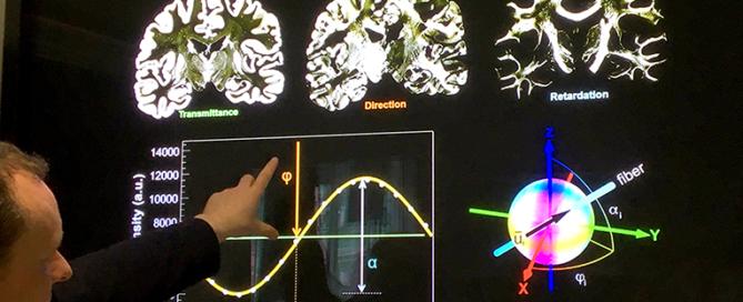 """Das Gehirn auf dem """"Schirm"""". Foto: privat"""